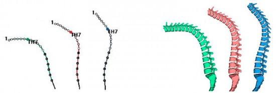 Плоская или плоско-вогнутая спина